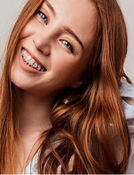 Trate dos seus dentes com os melhores profissionais! APARELHO dentário + 3 CONSULTAS + CHECK UP, no PORTO!